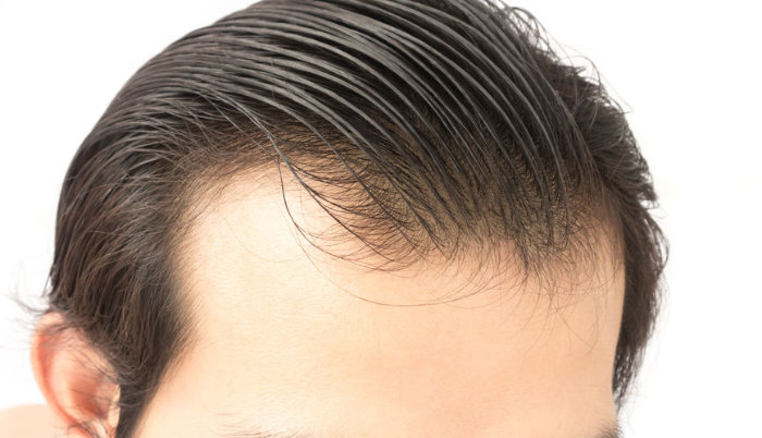 Hairstyles For Older Men With Thinning Hair